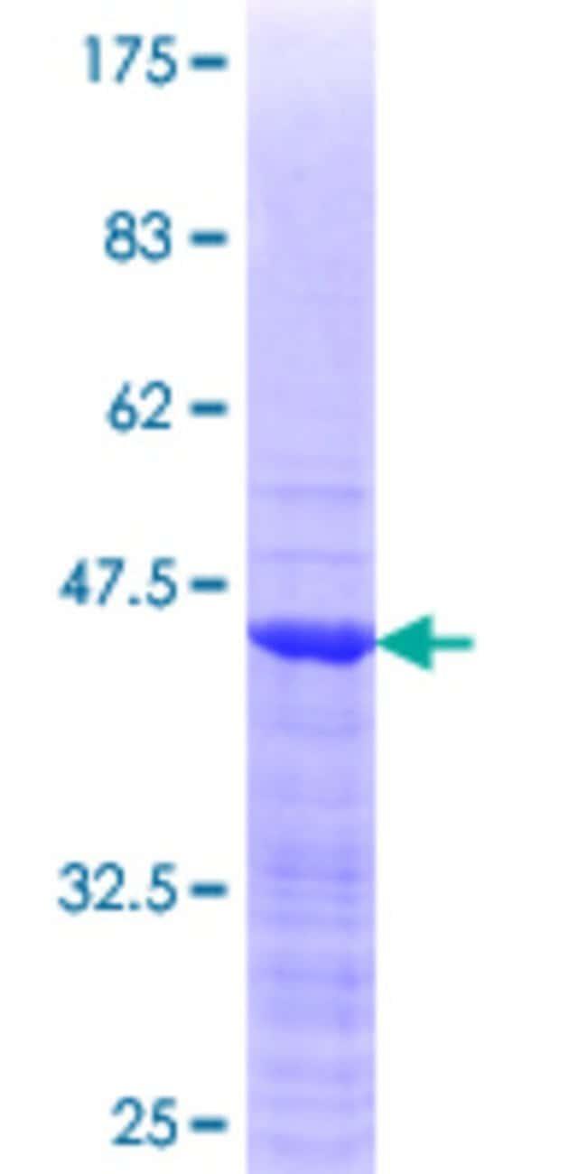 Abnova™Human SSX1 Partial ORF (NP_005626.1, 89 a.a. - 188 a.a.) Recombinant Protein with GST-tag at N-terminal 25μg Abnova™Human SSX1 Partial ORF (NP_005626.1, 89 a.a. - 188 a.a.) Recombinant Protein with GST-tag at N-terminal