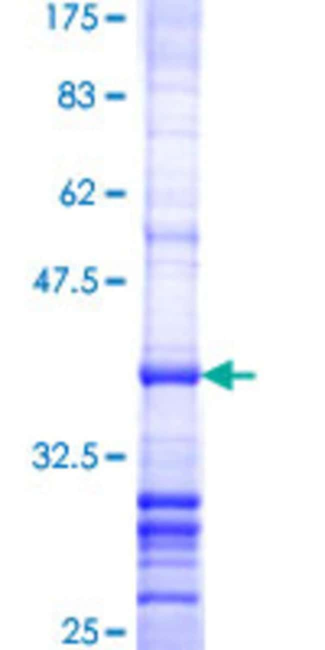 Abnova™ Human ST5 Partial ORF (NP_005409, 1038 a.a. - 1135 a.a.) Recombinant Protein with GST-tag at N-terminal 25μg Abnova™ Human ST5 Partial ORF (NP_005409, 1038 a.a. - 1135 a.a.) Recombinant Protein with GST-tag at N-terminal