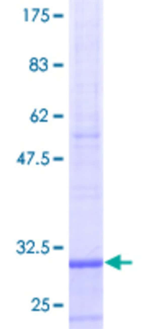 Abnova™Human ST13 Full-length ORF (AAH15317, 1 a.a. - 58 a.a.) Recombinant Protein with GST-tag at N-terminal 10μg Abnova™Human ST13 Full-length ORF (AAH15317, 1 a.a. - 58 a.a.) Recombinant Protein with GST-tag at N-terminal
