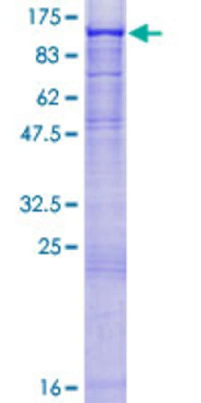 Abnova™Human ST14 Full-length ORF (AAH30532.1, 1 a.a. - 855 a.a.) Recombinant Protein with GST-tag at N-terminal 10μg Abnova™Human ST14 Full-length ORF (AAH30532.1, 1 a.a. - 855 a.a.) Recombinant Protein with GST-tag at N-terminal