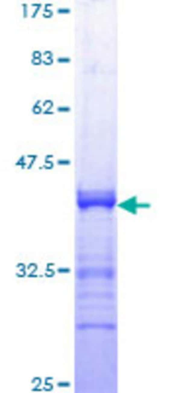 Abnova™Human STAT1 Partial ORF (AAH02704, 613 a.a. - 712 a.a.) Recombinant Protein with GST-tag at N-terminal 25μg Abnova™Human STAT1 Partial ORF (AAH02704, 613 a.a. - 712 a.a.) Recombinant Protein with GST-tag at N-terminal