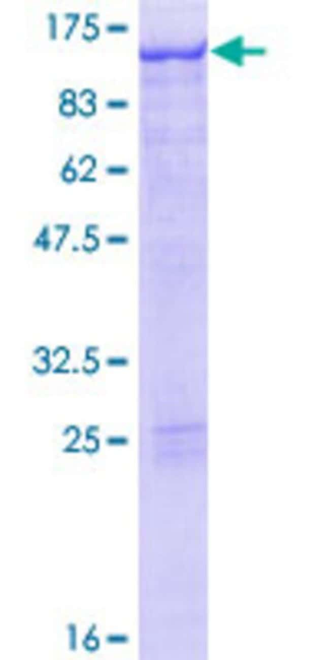 Abnova™ Human STAT5A Full-length ORF (NP_003143.2, 1 a.a. - 794 a.a.) Recombinant Protein with GST-tag at N-terminal 10μg Abnova™ Human STAT5A Full-length ORF (NP_003143.2, 1 a.a. - 794 a.a.) Recombinant Protein with GST-tag at N-terminal