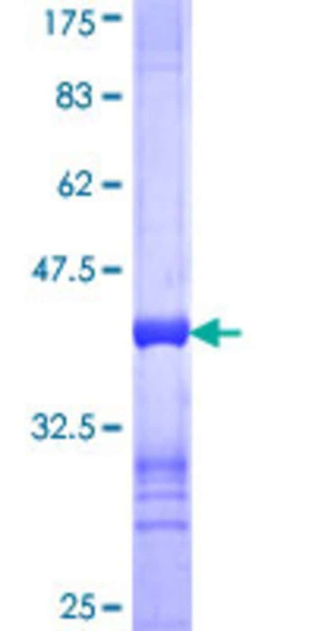 Abnova™Human STK4 Partial ORF (NP_006273, 391 a.a. - 485 a.a.) Recombinant Protein with GST-tag at N-terminal 10μg Abnova™Human STK4 Partial ORF (NP_006273, 391 a.a. - 485 a.a.) Recombinant Protein with GST-tag at N-terminal