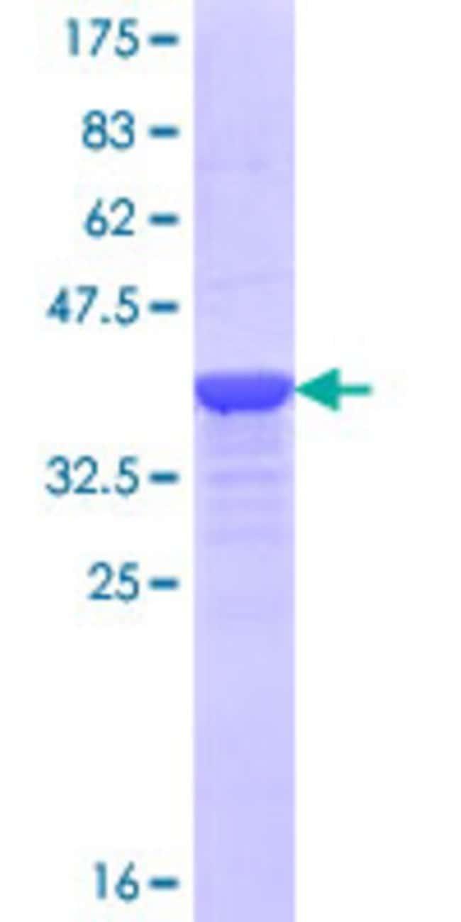 Abnova™Human AURKA Partial ORF (NP_940835.1, 1 a.a. - 100 a.a.) Recombinant Protein with GST-tag at N-terminal 25μg Abnova™Human AURKA Partial ORF (NP_940835.1, 1 a.a. - 100 a.a.) Recombinant Protein with GST-tag at N-terminal