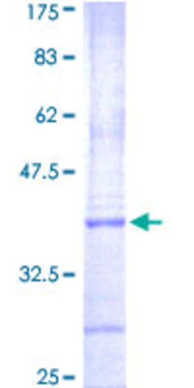 Abnova™Human AURKC Partial ORF (NP_003151, 186 a.a. - 275 a.a.) Recombinant Protein with GST-tag at N-terminal 10μg Abnova™Human AURKC Partial ORF (NP_003151, 186 a.a. - 275 a.a.) Recombinant Protein with GST-tag at N-terminal