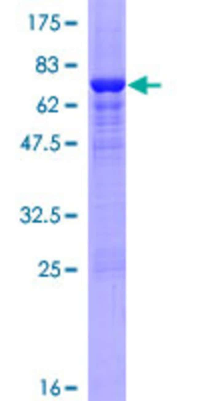 Abnova™Human SULT2B1 Full-length ORF (NP_814444.1, 1 a.a. - 365 a.a.) Recombinant Protein with GST-tag at N-terminal 10μg Abnova™Human SULT2B1 Full-length ORF (NP_814444.1, 1 a.a. - 365 a.a.) Recombinant Protein with GST-tag at N-terminal