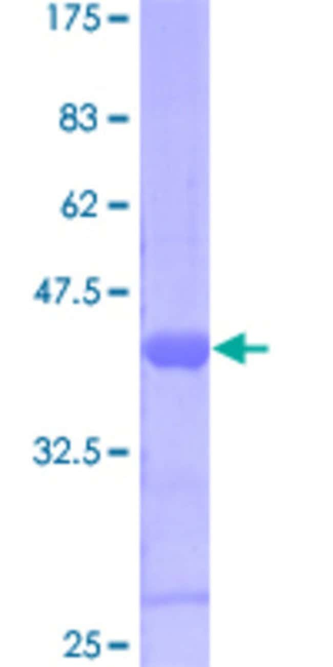 Abnova™Human SUPT4H1 Full-length ORF (AAH02802, 1 a.a. - 117 a.a.) Recombinant Protein with GST-tag at N-terminal 25μg Abnova™Human SUPT4H1 Full-length ORF (AAH02802, 1 a.a. - 117 a.a.) Recombinant Protein with GST-tag at N-terminal