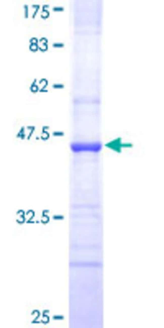 Abnova™Human ABCC8 Partial ORF (NP_000343, 611 a.a. - 710 a.a.) Recombinant Protein with GST-tag at N-terminal 10μg Abnova™Human ABCC8 Partial ORF (NP_000343, 611 a.a. - 710 a.a.) Recombinant Protein with GST-tag at N-terminal