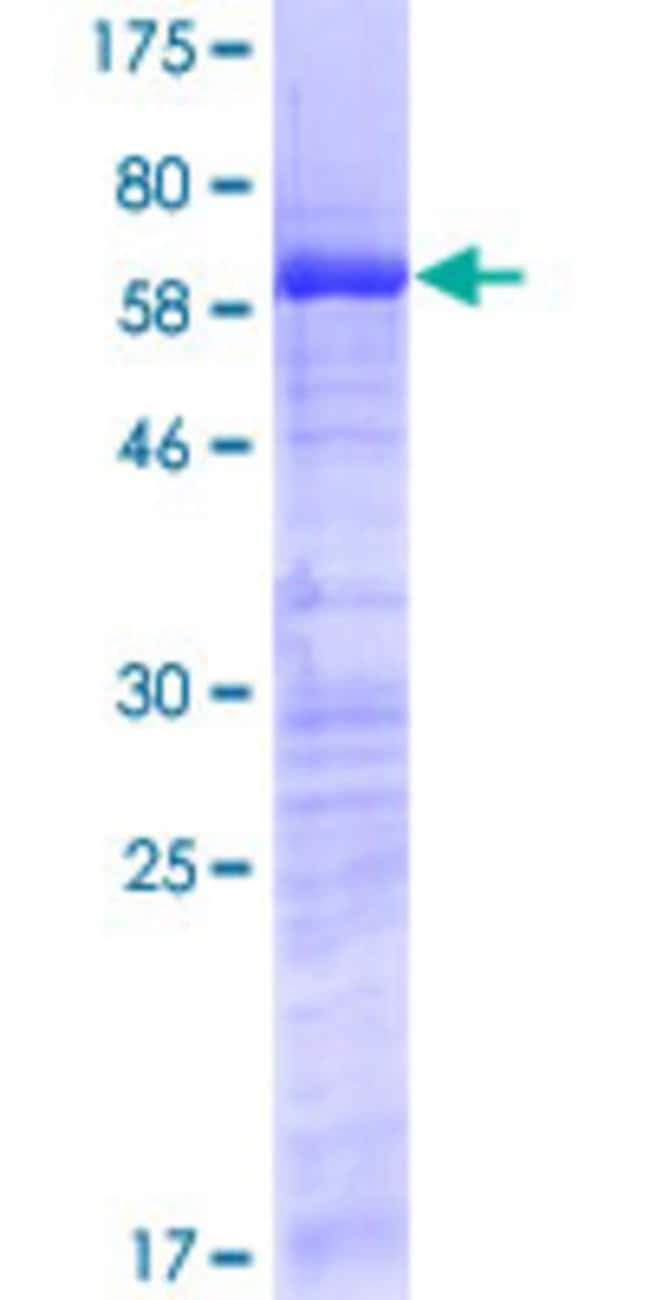 Abnova™Human SURF2 Full-length ORF (NP_059973.2, 1 a.a. - 256 a.a.) Recombinant Protein with GST-tag at N-terminal 25μg Abnova™Human SURF2 Full-length ORF (NP_059973.2, 1 a.a. - 256 a.a.) Recombinant Protein with GST-tag at N-terminal