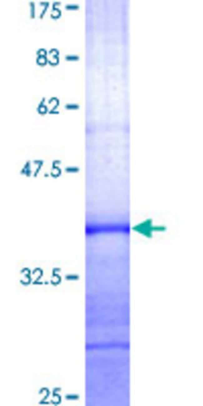 Abnova™Human SUV39H1 Partial ORF (AAH06238, 1 a.a. - 100 a.a.) Recombinant Protein with GST-tag at N-terminal 10μg Abnova™Human SUV39H1 Partial ORF (AAH06238, 1 a.a. - 100 a.a.) Recombinant Protein with GST-tag at N-terminal
