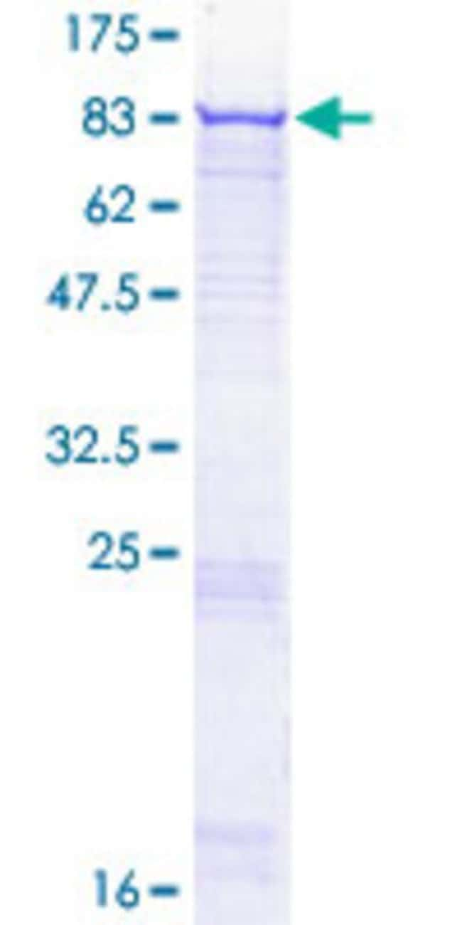 Abnova™Human SYK Full-length ORF (NP_003168.2, 1 a.a. - 635 a.a.) Recombinant Protein with GST-tag at N-terminal 10μg Abnova™Human SYK Full-length ORF (NP_003168.2, 1 a.a. - 635 a.a.) Recombinant Protein with GST-tag at N-terminal