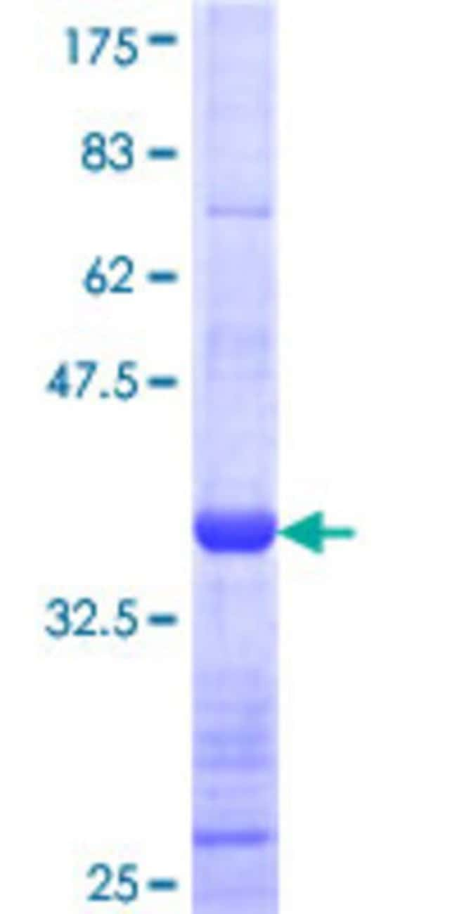 Abnova™Human SYK Partial ORF (AAH01645, 243 a.a. - 340 a.a.) Recombinant Protein with GST-tag at N-terminal 25μg Abnova™Human SYK Partial ORF (AAH01645, 243 a.a. - 340 a.a.) Recombinant Protein with GST-tag at N-terminal