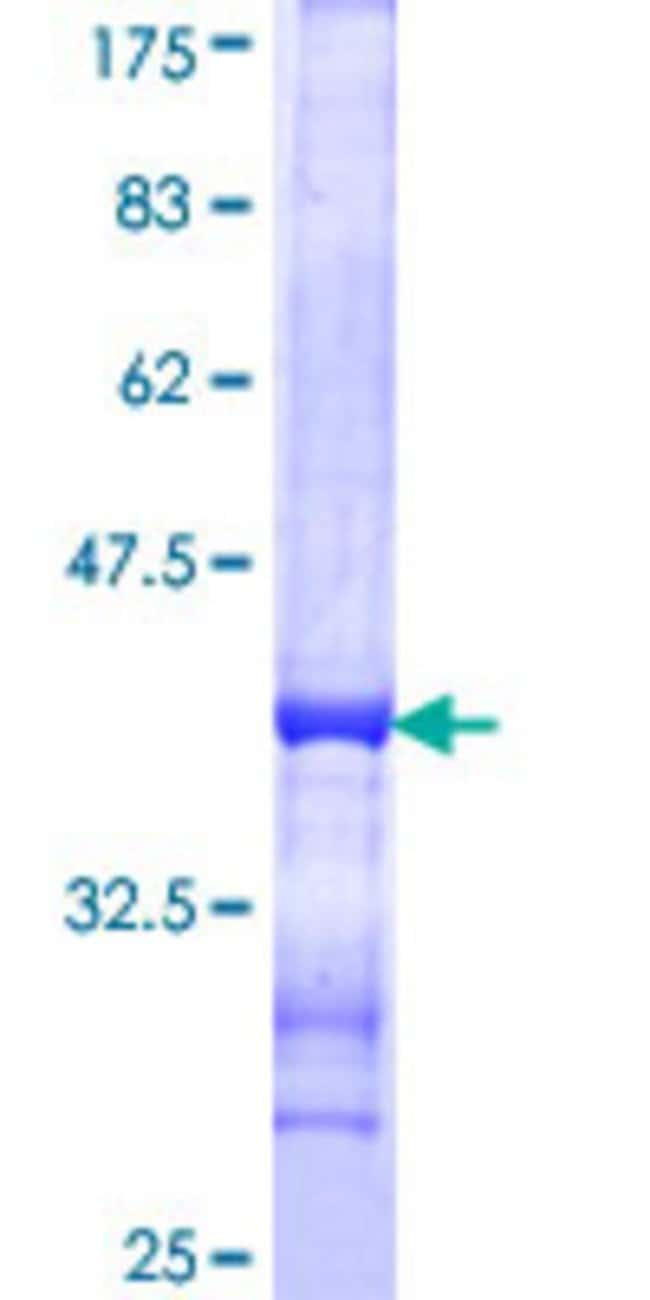 Abnova™Human SYN2 Partial ORF (NP_598328, 348 a.a. - 448 a.a.) Recombinant Protein with GST-tag at N-terminal 25μg Abnova™Human SYN2 Partial ORF (NP_598328, 348 a.a. - 448 a.a.) Recombinant Protein with GST-tag at N-terminal