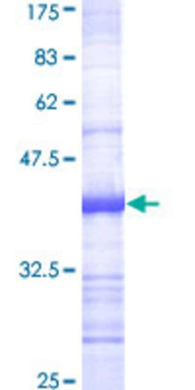 AbnovaHuman ADAM17 Partial ORF (NP_003174, 215 a.a. - 314 a.a.) Recombinant