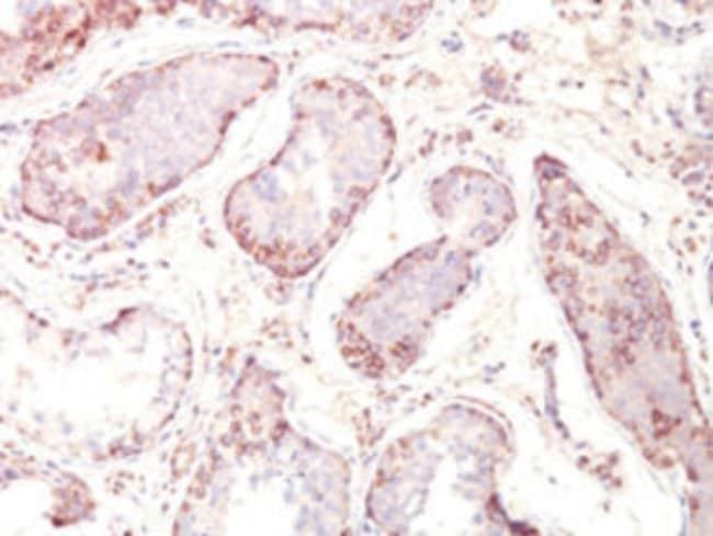 MAGEA1 Mouse anti-Human, Clone: MZ2E/838, Abnova 100μg; Unlabeled:Antibodies
