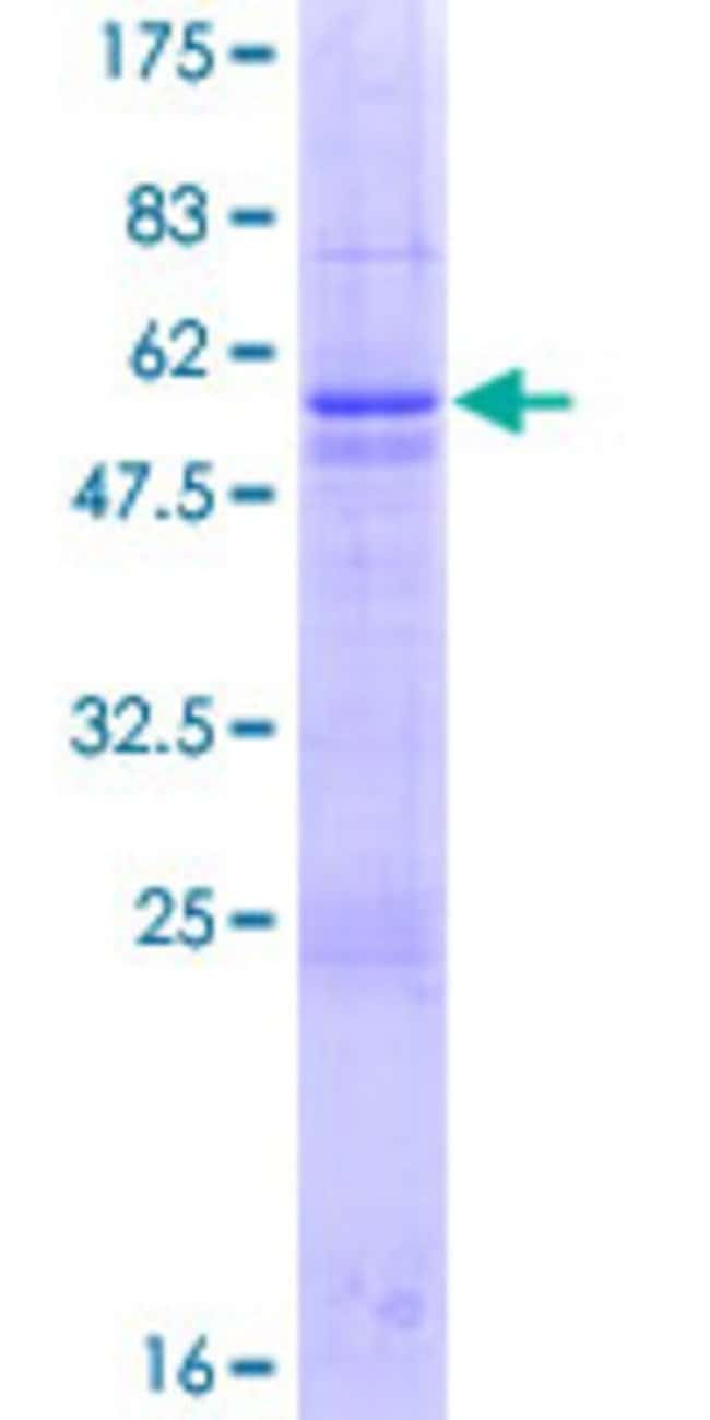 Abnova™ Human TAF11 Full-length ORF (NP_005634.1, 1 a.a. - 211 a.a.) Recombinant Protein with GST-tag at N-terminal 10μg Abnova™ Human TAF11 Full-length ORF (NP_005634.1, 1 a.a. - 211 a.a.) Recombinant Protein with GST-tag at N-terminal