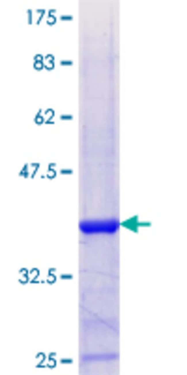 Abnova™Human TAF13 Partial ORF (NP_005636.1, 27 a.a. - 124 a.a.) Recombinant Protein with GST-tag at N-terminal 10μg Abnova™Human TAF13 Partial ORF (NP_005636.1, 27 a.a. - 124 a.a.) Recombinant Protein with GST-tag at N-terminal