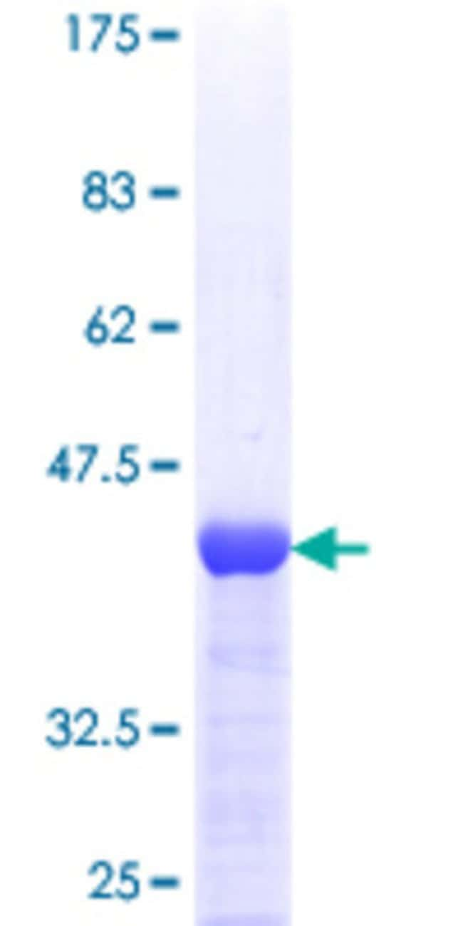 Abnova™ Human TBCA Full-length ORF (AAH18210, 1 a.a. - 108 a.a.) Recombinant Protein with GST-tag at N-terminal 25μg Abnova™ Human TBCA Full-length ORF (AAH18210, 1 a.a. - 108 a.a.) Recombinant Protein with GST-tag at N-terminal