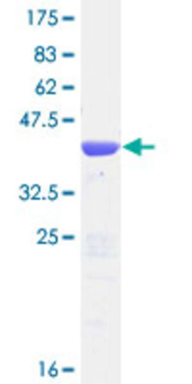 Abnova™Human TBCA Full-length ORF (NP_004598.1, 1 a.a. - 108 a.a.) Recombinant Protein with GST-tag at N-terminal 10μg Abnova™Human TBCA Full-length ORF (NP_004598.1, 1 a.a. - 108 a.a.) Recombinant Protein with GST-tag at N-terminal