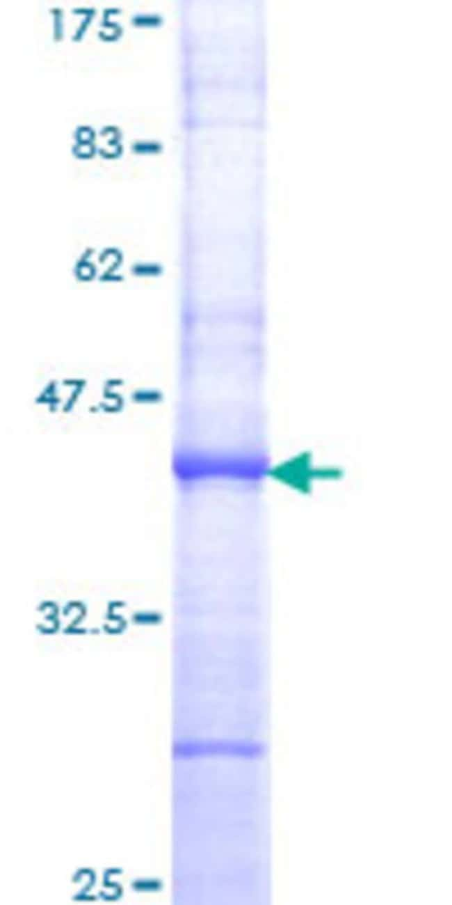 Abnova™Human TBP Partial ORF (NP_003185, 227 a.a. - 339 a.a.) Recombinant Protein with GST-tag at N-terminal 25μg Abnova™Human TBP Partial ORF (NP_003185, 227 a.a. - 339 a.a.) Recombinant Protein with GST-tag at N-terminal