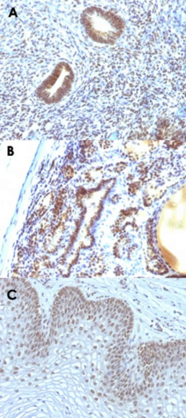 MAP3K1 Mouse anti-Human, Clone: 2F6, Abnova 100μg; Unlabeled:Antibodies