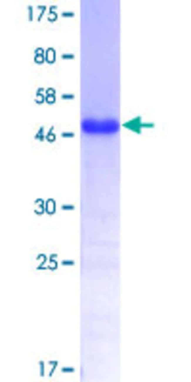 Abnova™Human TBX3 Partial ORF (NP_005987, 311 a.a. - 410 a.a.) Recombinant Protein with GST-tag at N-terminal 10μg Abnova™Human TBX3 Partial ORF (NP_005987, 311 a.a. - 410 a.a.) Recombinant Protein with GST-tag at N-terminal
