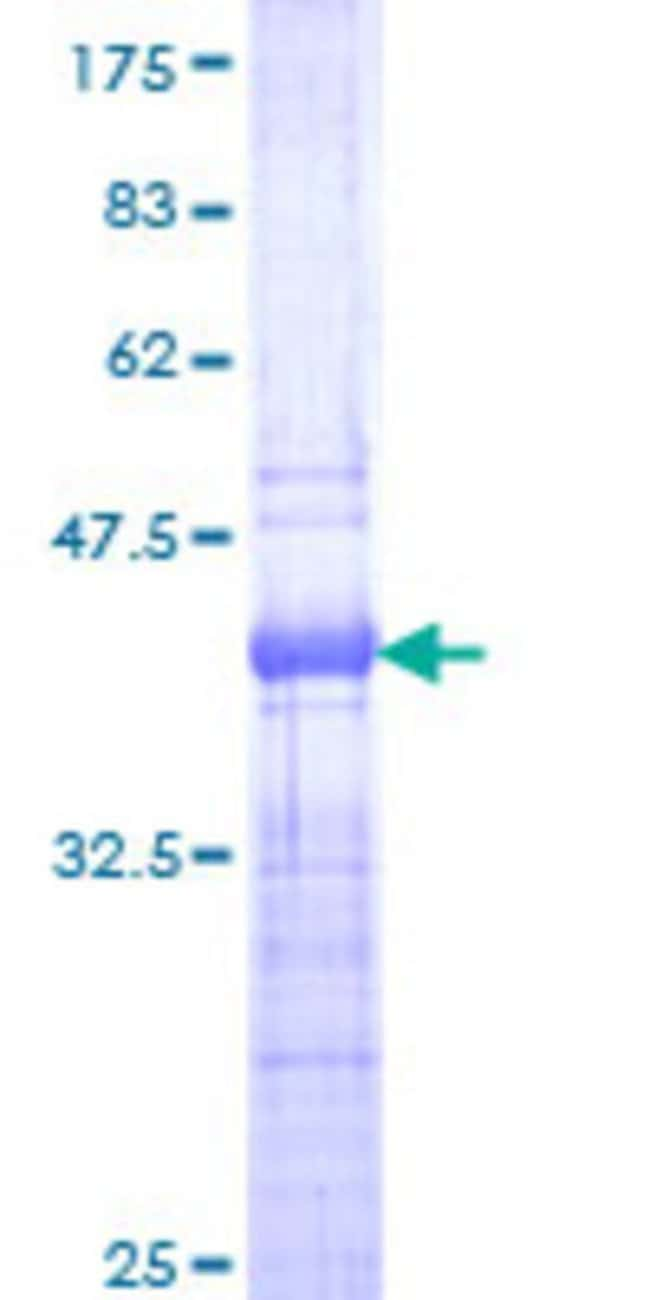 Abnova™Human TCF7 Partial ORF (NP_003193, 287 a.a. - 384 a.a.) Recombinant Protein with GST-tag at N-terminal 25μg Abnova™Human TCF7 Partial ORF (NP_003193, 287 a.a. - 384 a.a.) Recombinant Protein with GST-tag at N-terminal