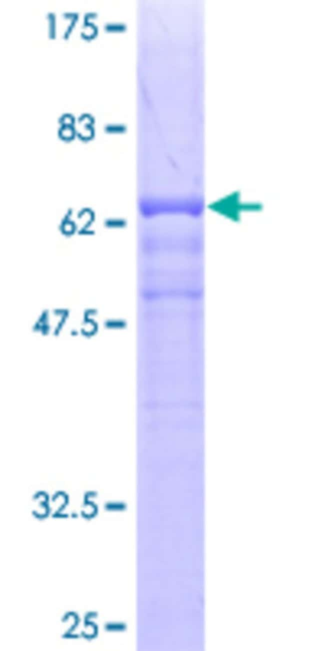 Abnova™Human TCN2 Full-length ORF (AAH11239, 1 a.a. - 400 a.a.) Recombinant Protein with GST-tag at N-terminal 25μg Abnova™Human TCN2 Full-length ORF (AAH11239, 1 a.a. - 400 a.a.) Recombinant Protein with GST-tag at N-terminal