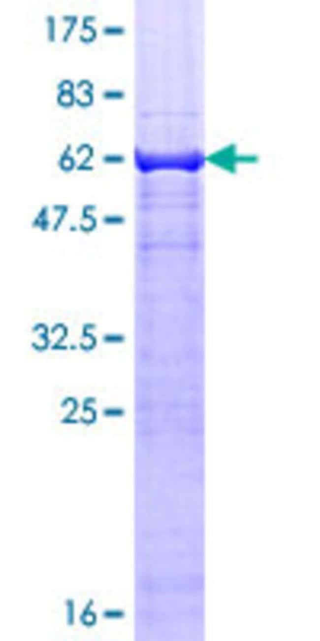 Abnova™Human TEAD3 Full-length ORF (AAH27877.1, 1 a.a. - 324 a.a.) Recombinant Protein with GST-tag at N-terminal 25μg Abnova™Human TEAD3 Full-length ORF (AAH27877.1, 1 a.a. - 324 a.a.) Recombinant Protein with GST-tag at N-terminal