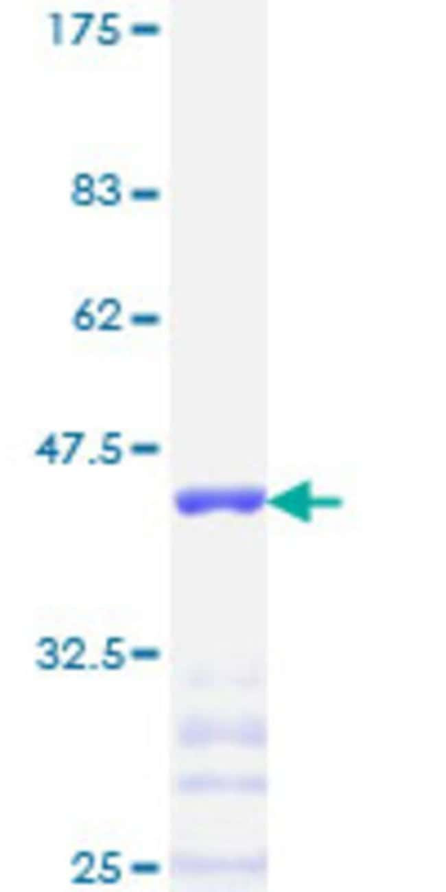 Abnova™Human TFAP2A Partial ORF (AAH17754, 99 a.a. - 205 a.a.) Recombinant Protein with GST-tag at N-terminal 10μg Abnova™Human TFAP2A Partial ORF (AAH17754, 99 a.a. - 205 a.a.) Recombinant Protein with GST-tag at N-terminal