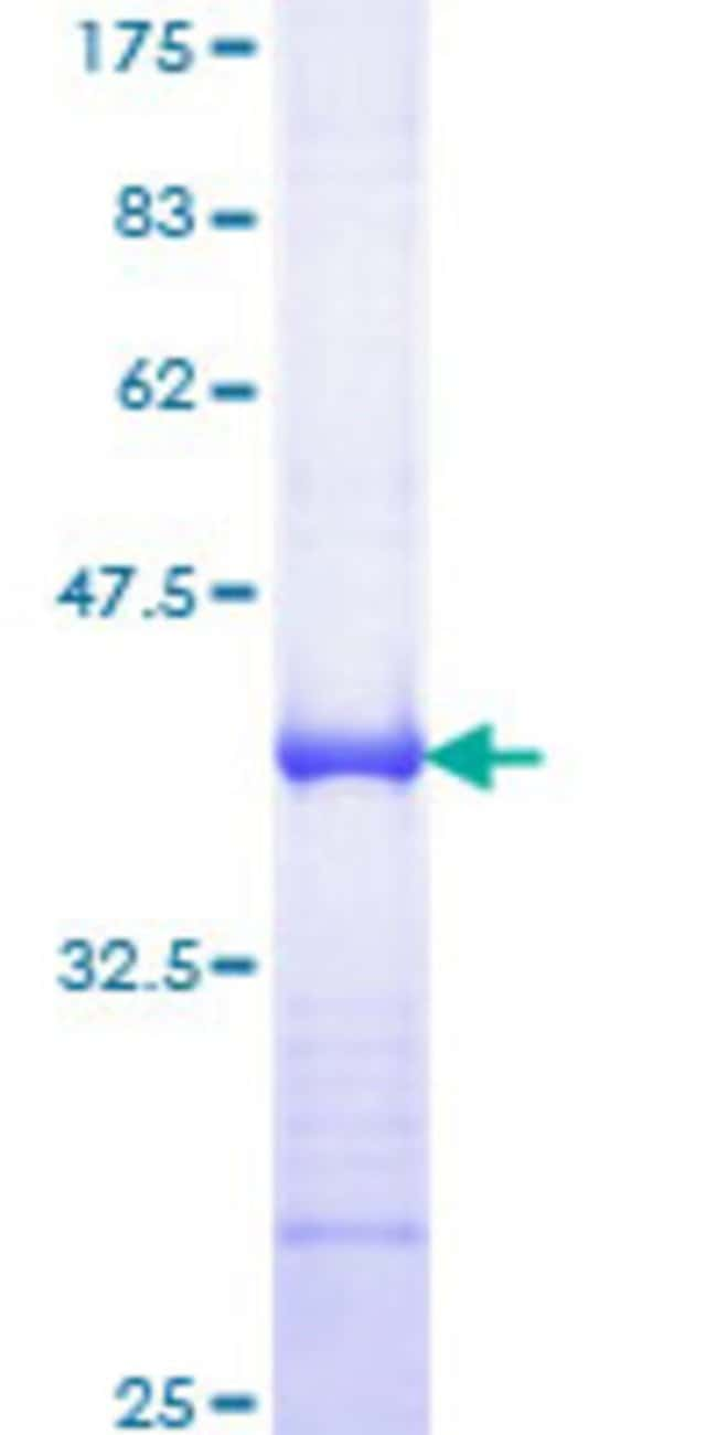 Abnova™Human TFAP2C Partial ORF (NP_003213, 341 a.a. - 450 a.a.) Recombinant Protein with GST-tag at N-terminal 25μg Abnova™Human TFAP2C Partial ORF (NP_003213, 341 a.a. - 450 a.a.) Recombinant Protein with GST-tag at N-terminal