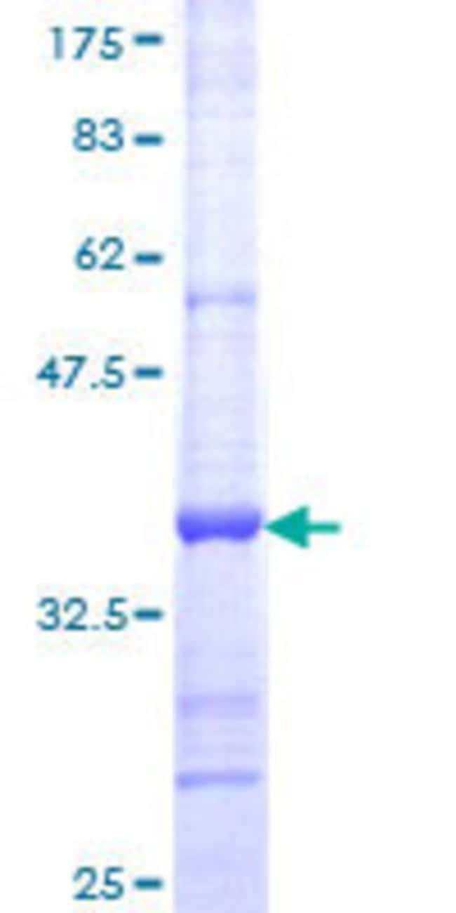 Abnova™Human NR2F2 Partial ORF (NP_066285, 153 a.a. - 240 a.a.) Recombinant Protein with GST-tag at N-terminal 10μg Abnova™Human NR2F2 Partial ORF (NP_066285, 153 a.a. - 240 a.a.) Recombinant Protein with GST-tag at N-terminal