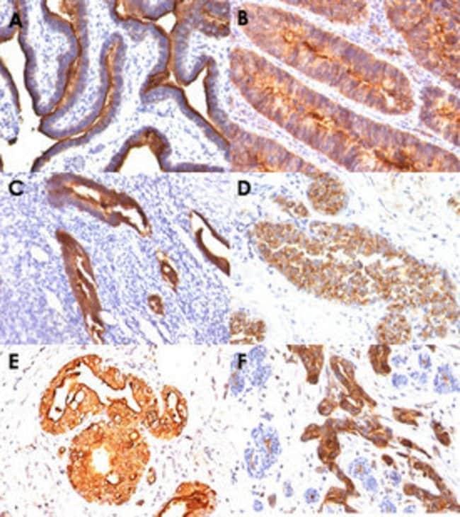 MUC1 Mouse anti-Human, Clone: MUC1/845, Abnova 100μg; Unlabeled:Antibodies
