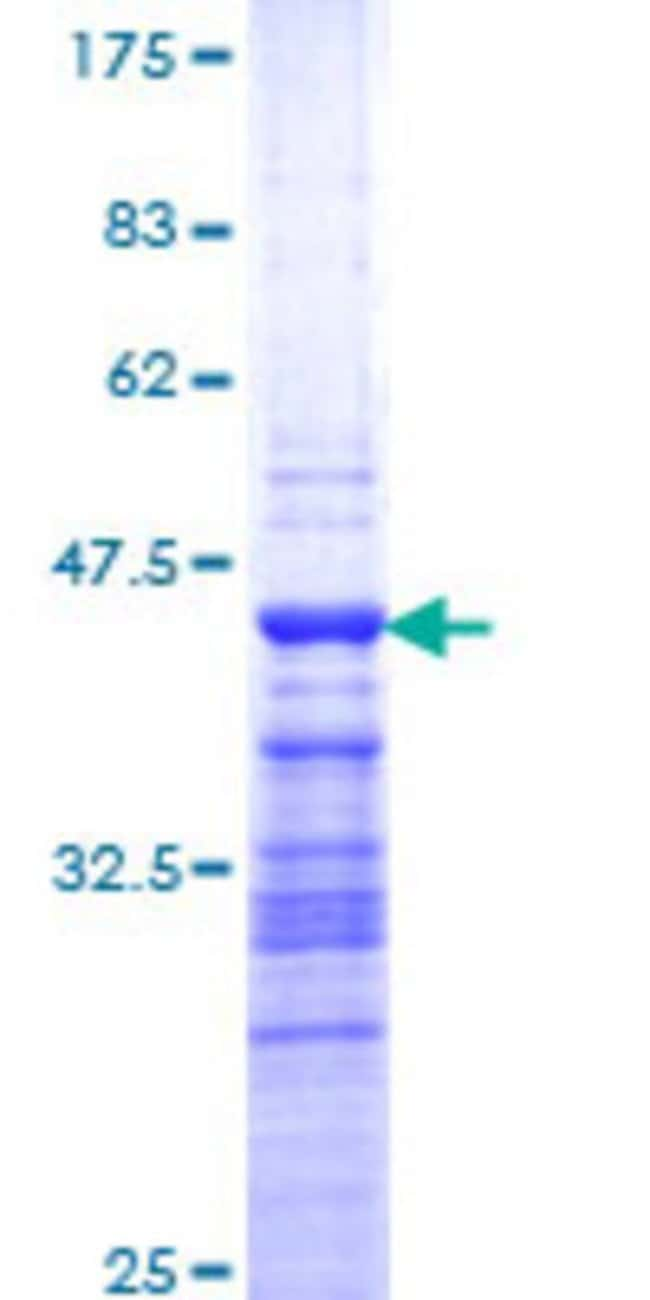 Abnova™Human TFDP2 Partial ORF (NP_006277, 1 a.a. - 110 a.a.) Recombinant Protein with GST-tag at N-terminal 25μg Abnova™Human TFDP2 Partial ORF (NP_006277, 1 a.a. - 110 a.a.) Recombinant Protein with GST-tag at N-terminal