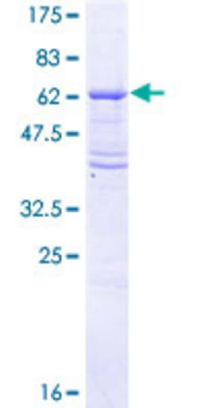 Abnova™Human TGFBR2 Full-length ORF (AAH40499.1, 1 a.a. - 334 a.a.) Recombinant Protein with GST-tag at N-terminal 25μg Abnova™Human TGFBR2 Full-length ORF (AAH40499.1, 1 a.a. - 334 a.a.) Recombinant Protein with GST-tag at N-terminal