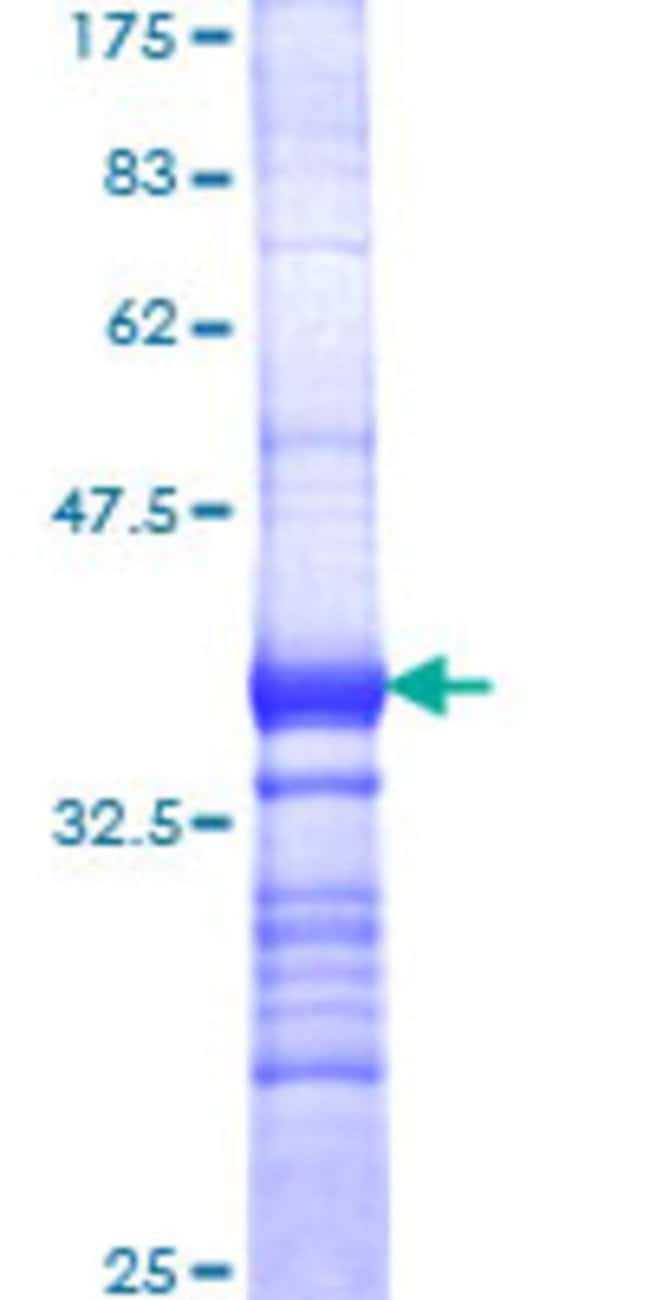 Abnova™Human THRA Partial ORF (AAH02728, 87 a.a. - 178 a.a.) Recombinant Protein with GST-tag at N-terminal 25μg Abnova™Human THRA Partial ORF (AAH02728, 87 a.a. - 178 a.a.) Recombinant Protein with GST-tag at N-terminal