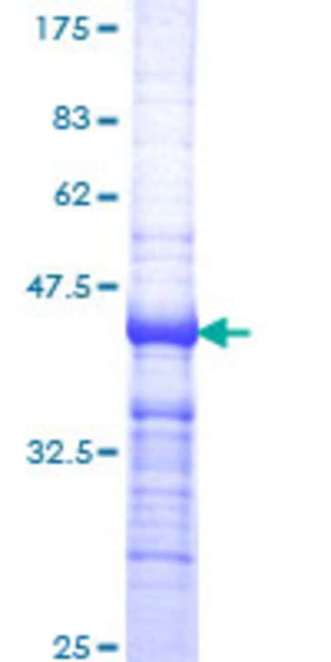 Abnova™Human THRB Partial ORF (NP_000452, 1 a.a. - 110 a.a.) Recombinant Protein with GST-tag at N-terminal 10μg Abnova™Human THRB Partial ORF (NP_000452, 1 a.a. - 110 a.a.) Recombinant Protein with GST-tag at N-terminal