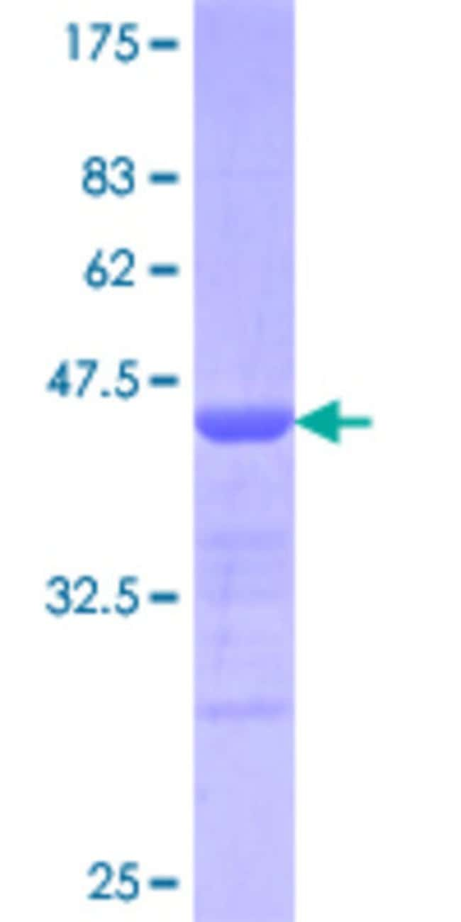 Abnova™ Human KLF10 Partial ORF (AAH11538.1, 111 a.a. - 210 a.a.) Recombinant Protein with GST-tag at N-terminal: Proteins A-Z Proteins