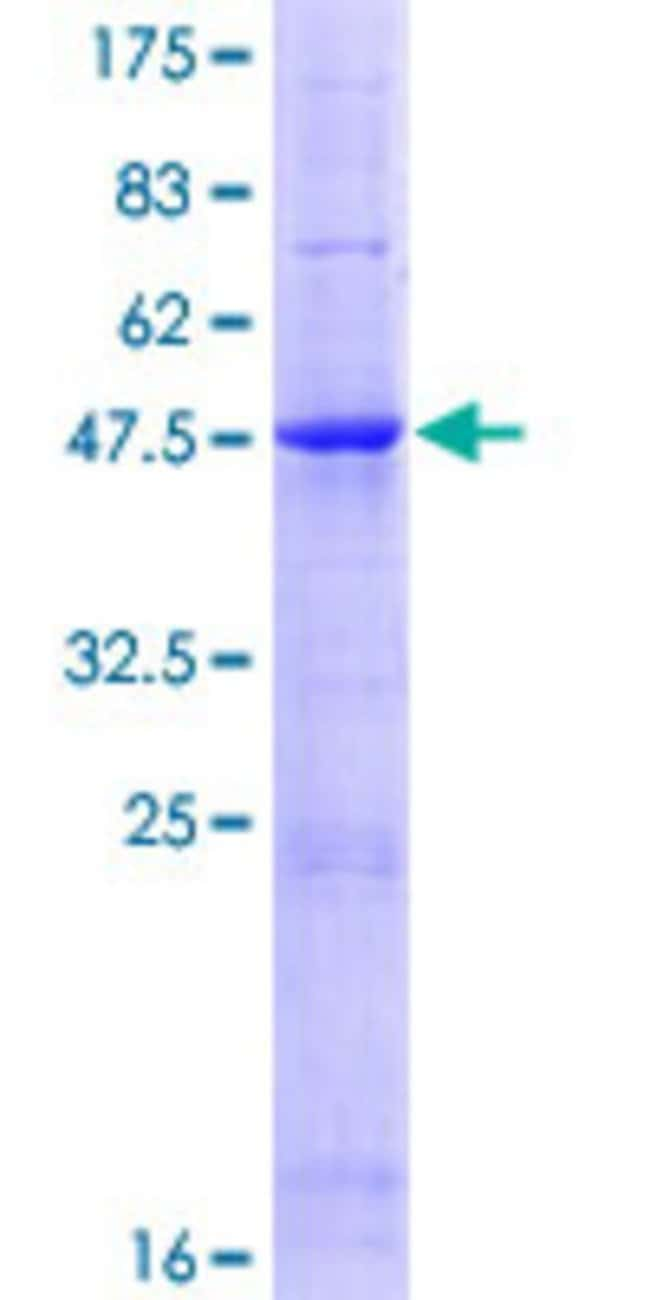 Abnova™Human TIMP4 Full-length ORF (NP_003247.1, 1 a.a. - 224 a.a.) Recombinant Protein with GST-tag at N-terminal 25μg Abnova™Human TIMP4 Full-length ORF (NP_003247.1, 1 a.a. - 224 a.a.) Recombinant Protein with GST-tag at N-terminal