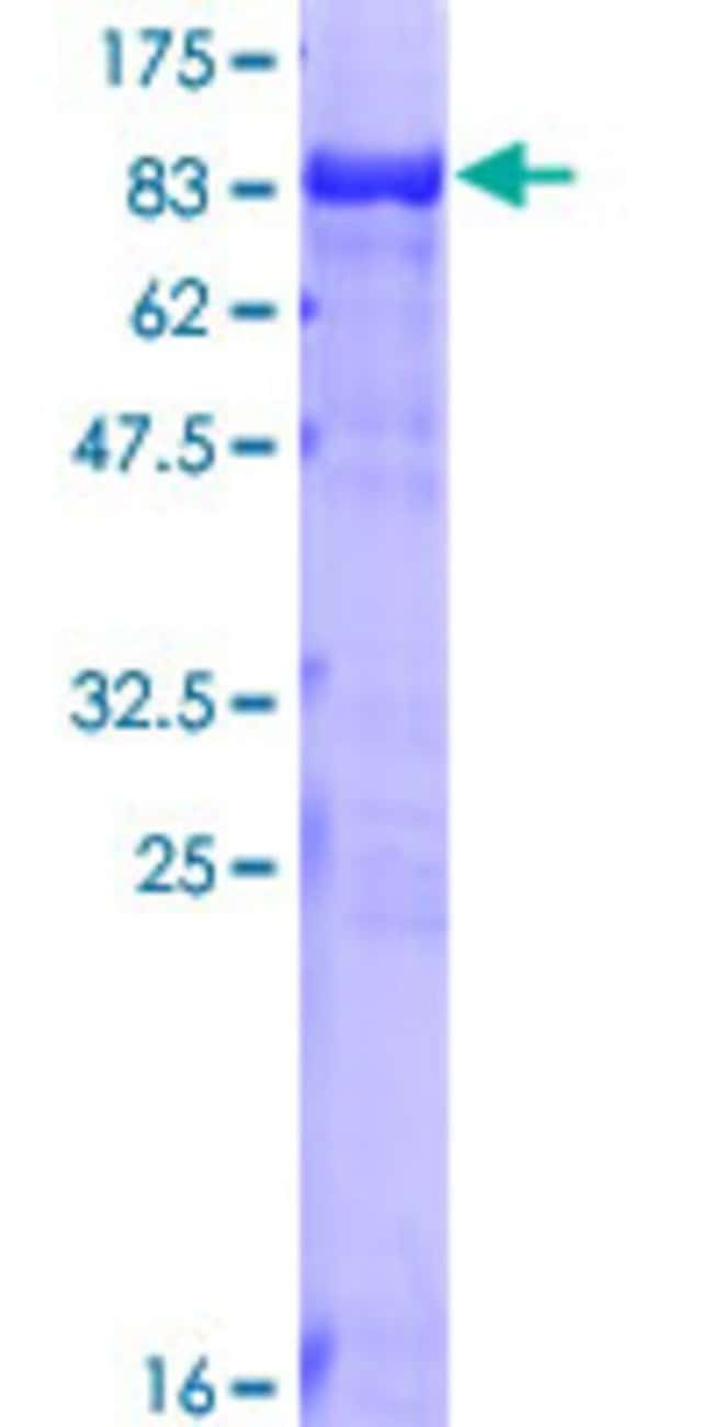 Abnova™Human TKT Full-length ORF (NP_001055.1, 1 a.a. - 623 a.a.) Recombinant Protein with GST-tag at N-terminal 25μg Abnova™Human TKT Full-length ORF (NP_001055.1, 1 a.a. - 623 a.a.) Recombinant Protein with GST-tag at N-terminal