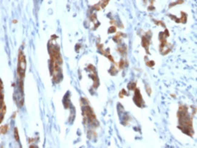 MUC5AC Mouse anti-Human, Clone: CLH2, Abnova 100μg; Unlabeled:Antibodies