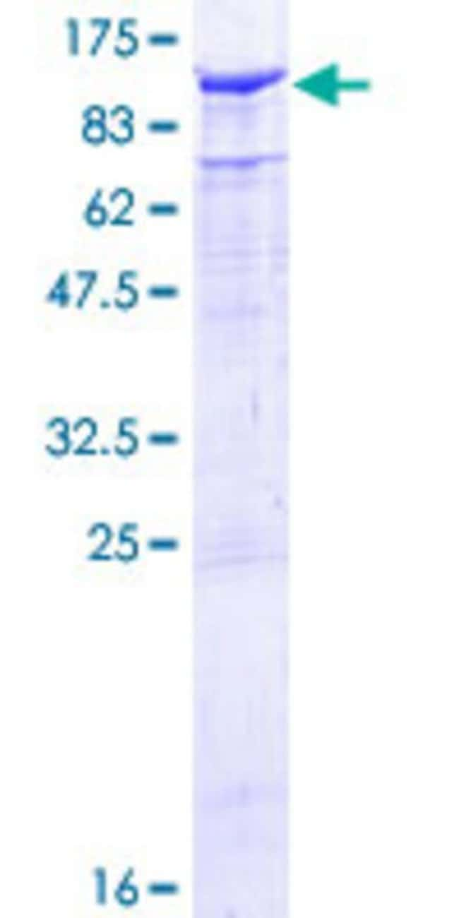Abnova™Human TLE2 Full-length ORF (NP_003251.2, 1 a.a. - 743 a.a.) Recombinant Protein with GST-tag at N-terminal 10μg Abnova™Human TLE2 Full-length ORF (NP_003251.2, 1 a.a. - 743 a.a.) Recombinant Protein with GST-tag at N-terminal