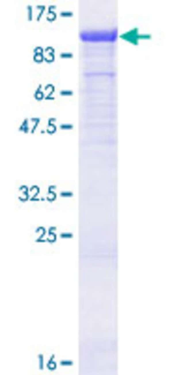 Abnova™Human TLE3 Full-length ORF (AAH41831.1, 1 a.a. - 772 a.a.) Recombinant Protein with GST-tag at N-terminal 25μg Abnova™Human TLE3 Full-length ORF (AAH41831.1, 1 a.a. - 772 a.a.) Recombinant Protein with GST-tag at N-terminal