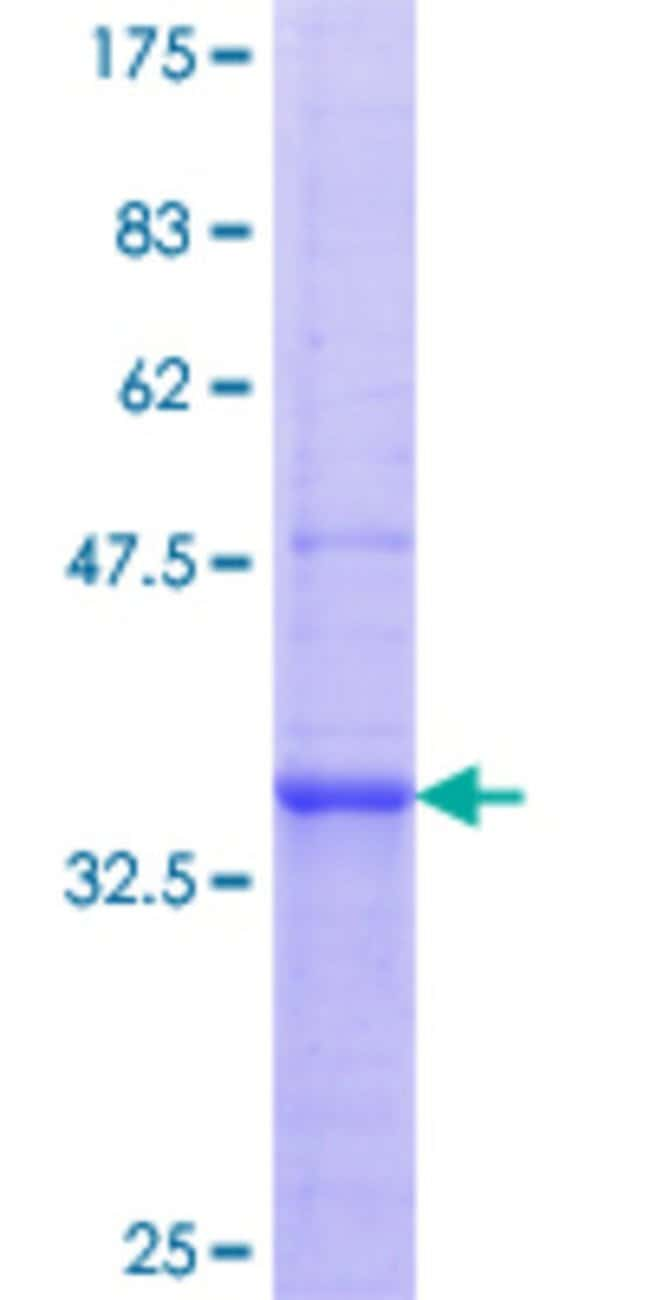 Abnova™Human TLR2 Partial ORF (AAH33756.1, 201 a.a. - 300 a.a.) Recombinant Protein with GST-tag at N-terminal 25μg Abnova™Human TLR2 Partial ORF (AAH33756.1, 201 a.a. - 300 a.a.) Recombinant Protein with GST-tag at N-terminal