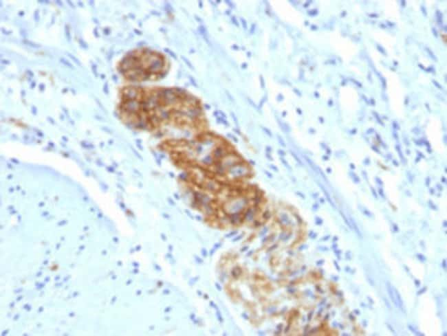 NCAM1 Mouse anti-Human, Clone: NCAM1/784, Abnova 100μg; Unlabeled:Antibodies