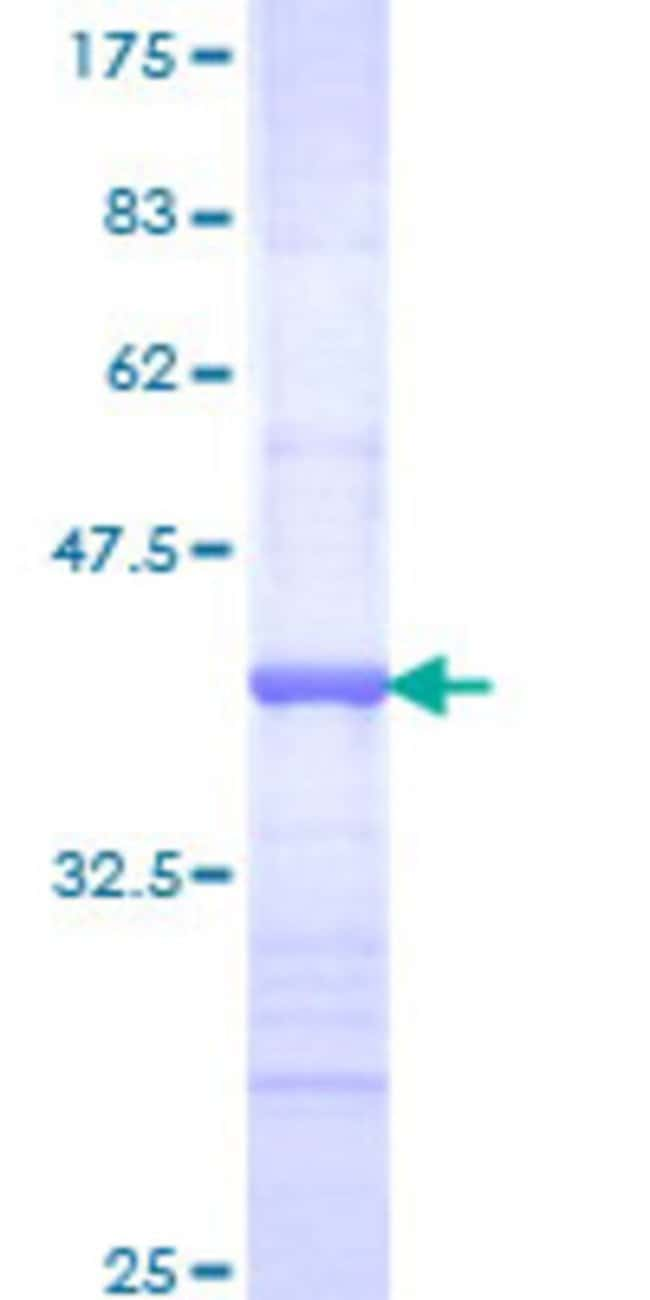 Abnova™Human NR2E1 Partial ORF (NP_003260, 249 a.a. - 342 a.a.) Recombinant Protein with GST-tag at N-terminal 10μg Abnova™Human NR2E1 Partial ORF (NP_003260, 249 a.a. - 342 a.a.) Recombinant Protein with GST-tag at N-terminal