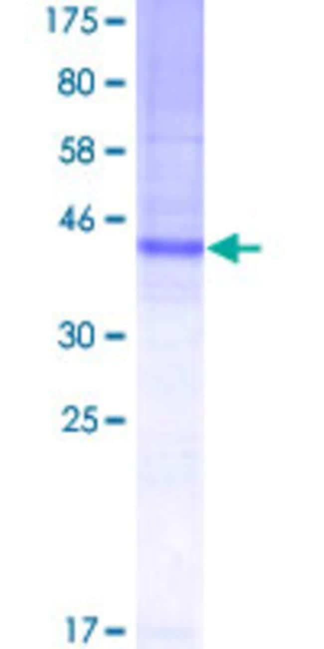 Abnova™Human TSPAN8 Full-length ORF (AAH05246.1, 1 a.a. - 237 a.a.) Recombinant Protein MW: 51.81kDa with GST-tag at N-terminal 10μg Abnova™Human TSPAN8 Full-length ORF (AAH05246.1, 1 a.a. - 237 a.a.) Recombinant Protein MW: 51.81kDa with GST-tag at N-terminal