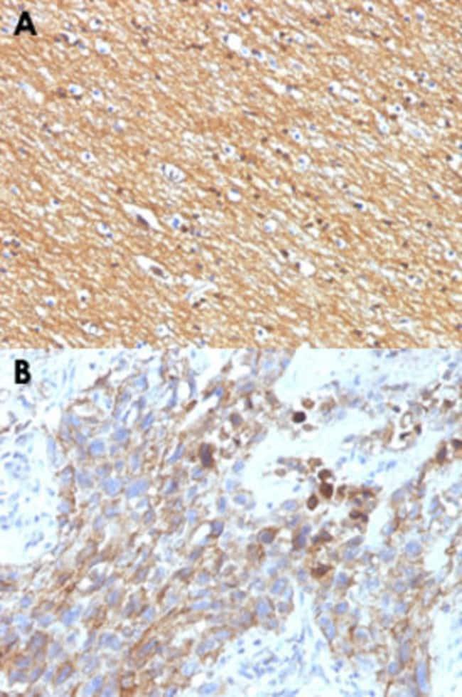 NCAM1 Mouse anti-Human, Clone: NCAM1/795, Abnova 100μg; Unlabeled:Antibodies
