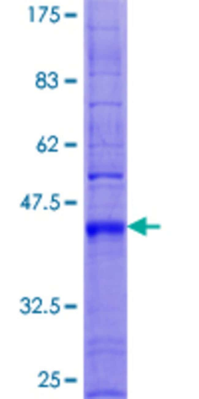 Abnova™Human TM4SF4 Full-length ORF (NP_004608.1, 1 a.a. - 202 a.a.) Recombinant Protein with GST-tag at N-terminal 25μg Abnova™Human TM4SF4 Full-length ORF (NP_004608.1, 1 a.a. - 202 a.a.) Recombinant Protein with GST-tag at N-terminal
