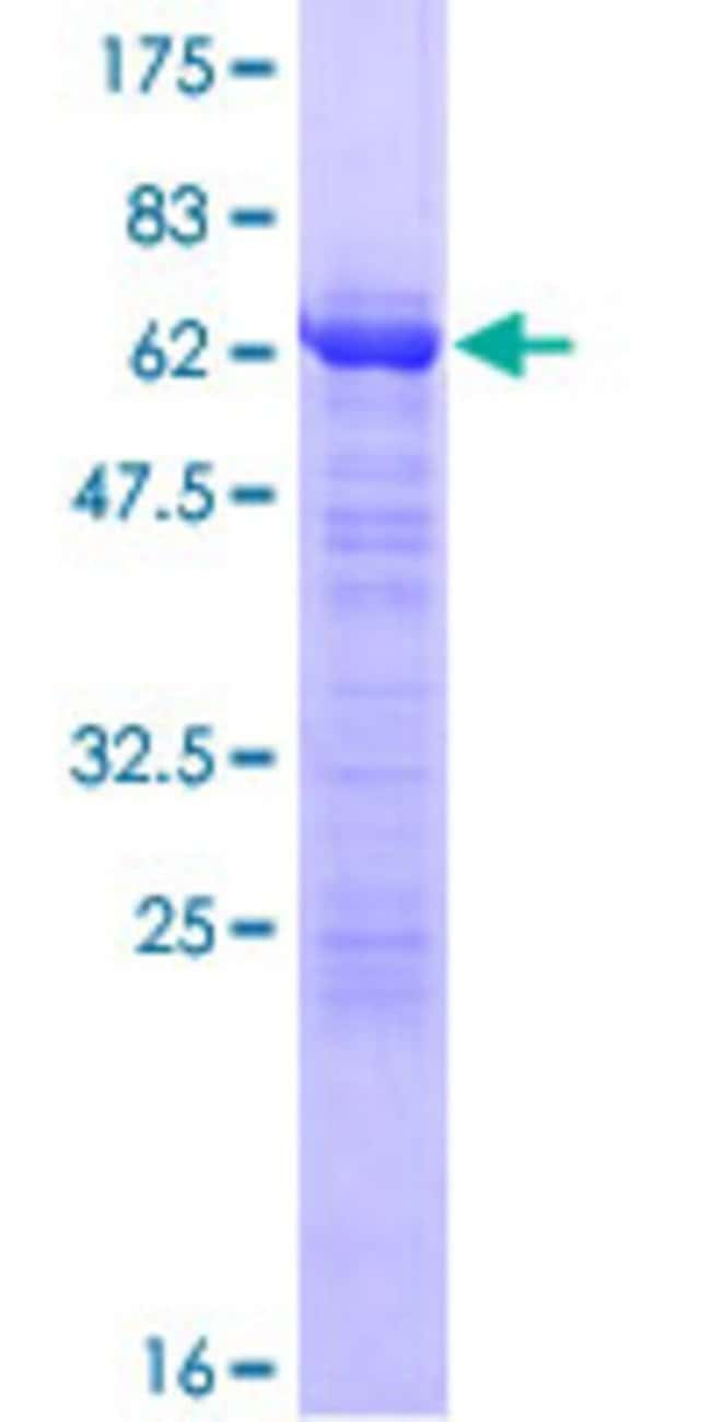 Abnova™Human TMOD1 Full-length ORF (NP_003266.1, 1 a.a. - 359 a.a.) Recombinant Protein with GST-tag at N-terminal 10μg Abnova™Human TMOD1 Full-length ORF (NP_003266.1, 1 a.a. - 359 a.a.) Recombinant Protein with GST-tag at N-terminal
